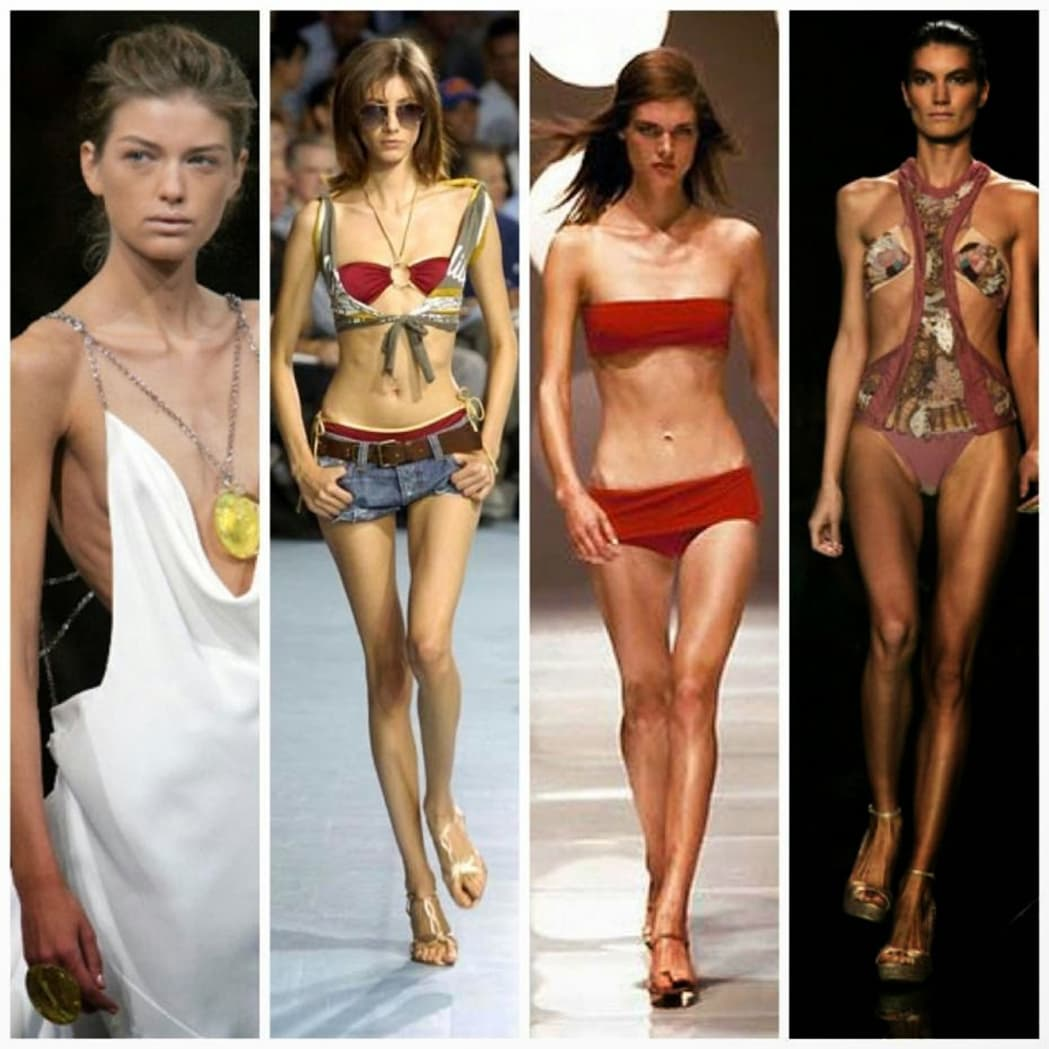 mannequins-anorexie-runway-actualite New Fashion Law